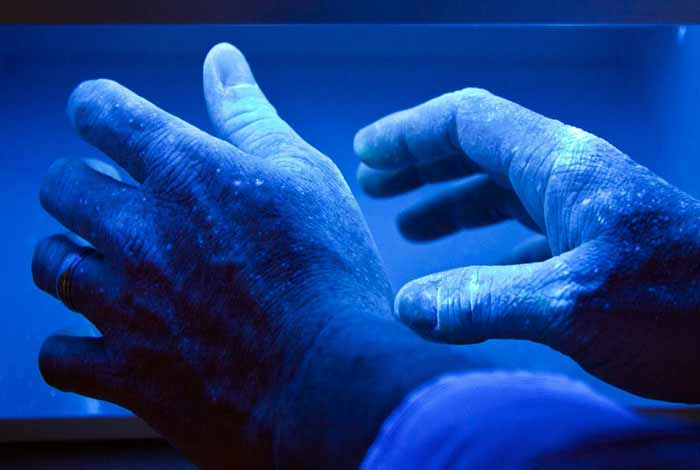 effectiveness of uv light therapy for psoriatic arthritis