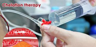 source of chelation-therapy