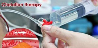 chelation therapy how and when