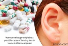 hormone therapy might be a possible cause of hearing loss in women after menopause
