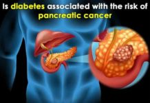 is diabetes associated with the risk of pancreatic cancer