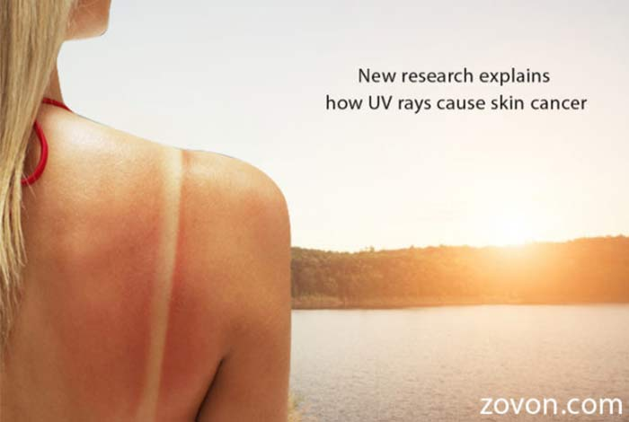 new research explains how uv rays cause skin cancer