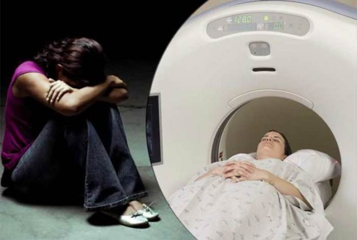 study says structural changes in brain similar in people with depression and anxiety