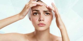 What is acne ?