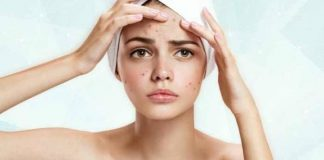 13 essential home remedies for acne