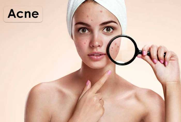 all about acne causes & treatments types prevention and symptoms