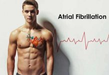 atrial fibrillation symptoms causes prevention and treatment