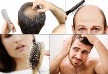 baldness symptoms causes pattern prevention and treatment