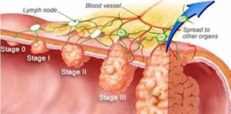research suggests colon cancer screening should be in early 40s and not at