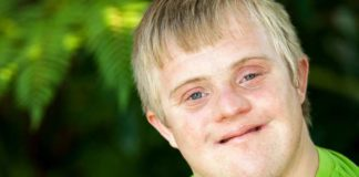 Aarskog Syndrome