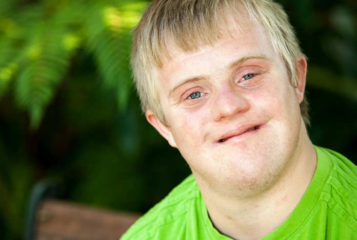Aarskog Syndrome - Causes, Symptoms, Diagnosis & Treatment
