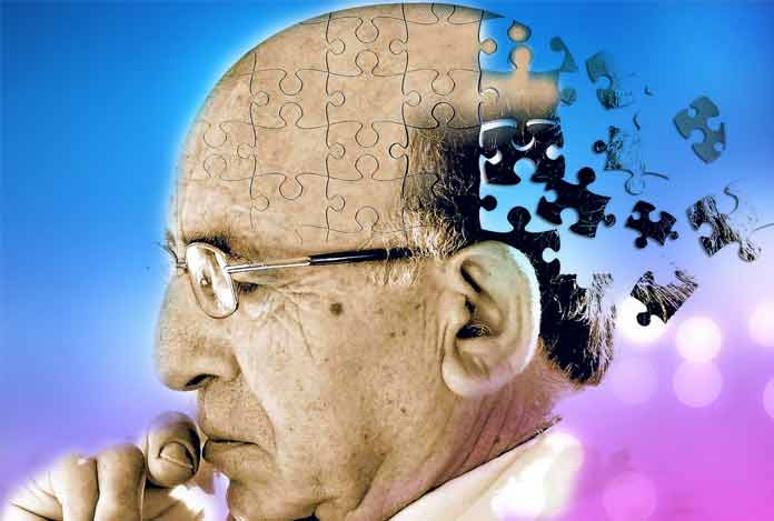 Alzheimer's Disease and Myths About it