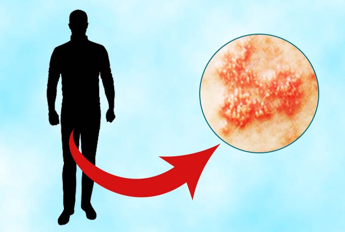 Genital Herpes - Causes, Symptoms, Risk Factors and Treatment