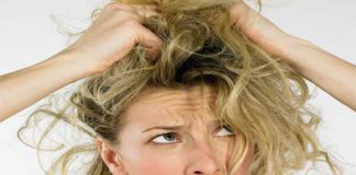 Hair Fall – What Role does Dandruff Play in It?