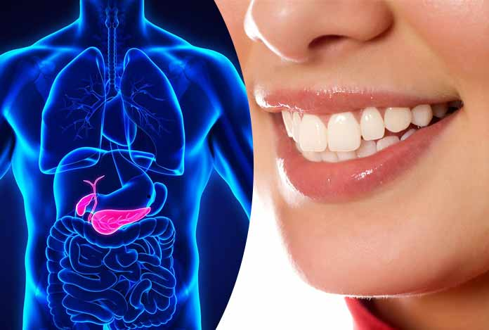 Prevention of pancreatic cancer is linked to oral hygiene