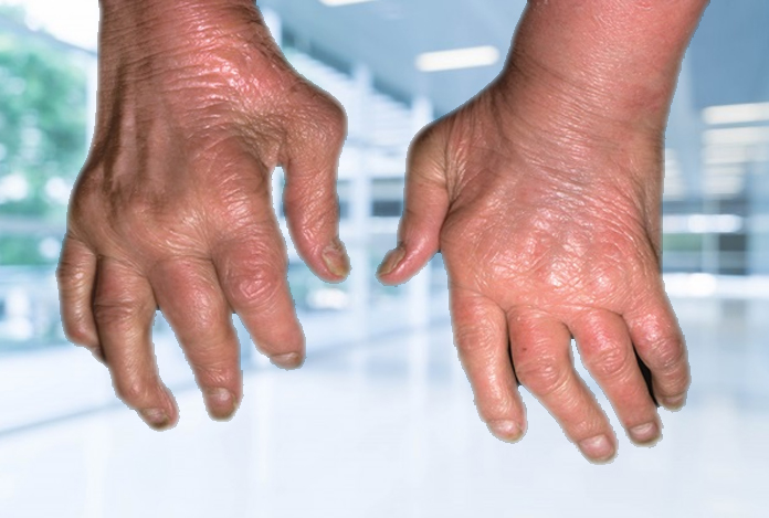 Psoriatic Arthritis: Types, Symptoms, Causes and Treatment