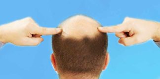 Restores Your Hair Growth - Home Remedies for Baldness in Men