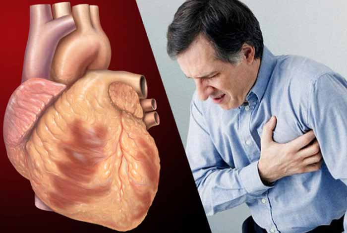 coronary artery disease types symptoms causes risk factors and treatment