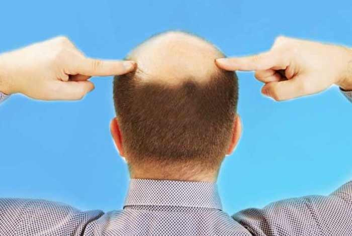 restores your hair growth home-remedies for baldness in men