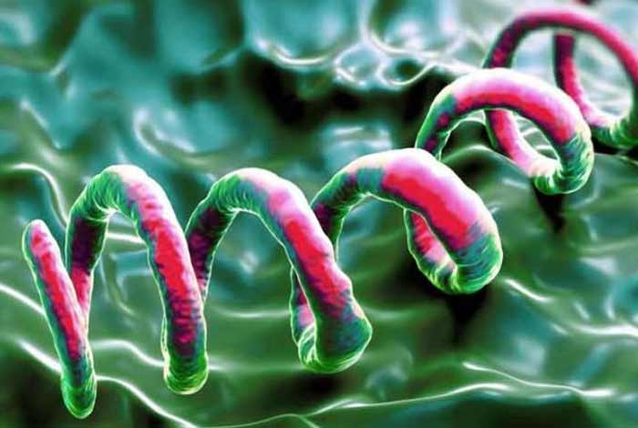 syphilis types symptoms causes diagnosis prevention and treatment