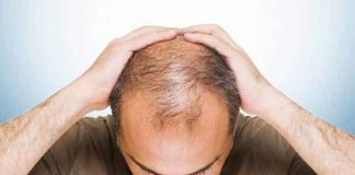 top 17 effectively useful home remedies for baldness