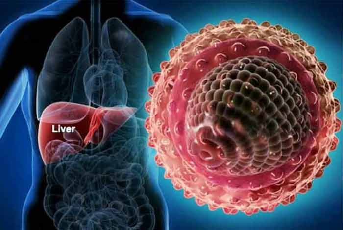 viral hepatitis types symptoms causes prevention and treatment