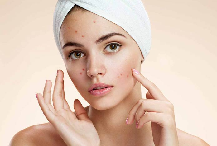 Get Rid of Acne/Pimples - 7 Effective Home Remedies