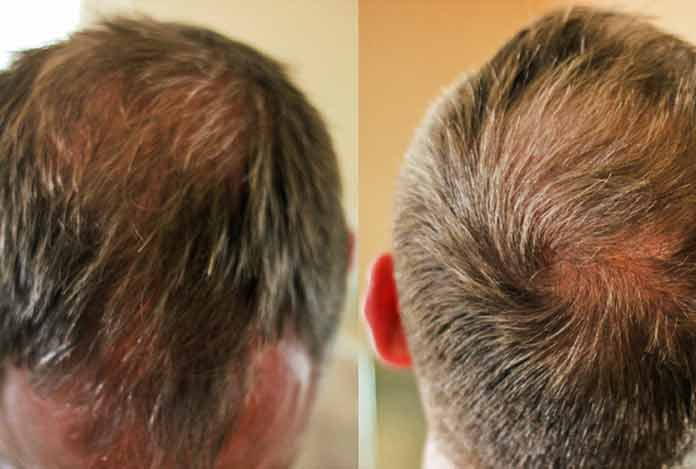 Hair Thinning -- Reasons and Cure