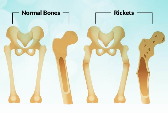Rickets Types Symptoms Causes Prevention And Treatment