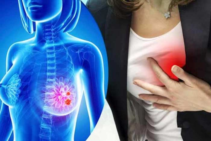 breast cancer treatment might increase risk of cardiovascular diseases