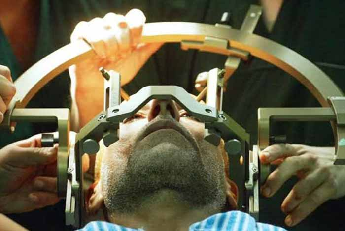 deep brain stimulation can reduce fatigue in patients with multiple sclerosis