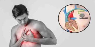 new research shows that cardiac pacemakers can be hacked