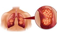 lung cancer types causes symptoms and treatment