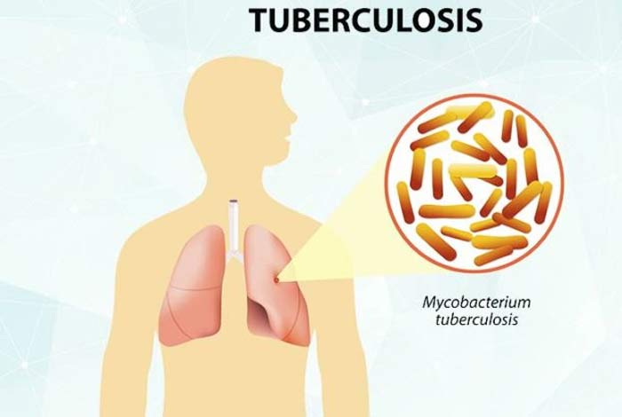 tuberculosis causes symptoms and treatment