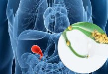 gallstones causes symptoms prevention and treatment