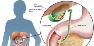 gallstones cholelithiasis and its most common drug list