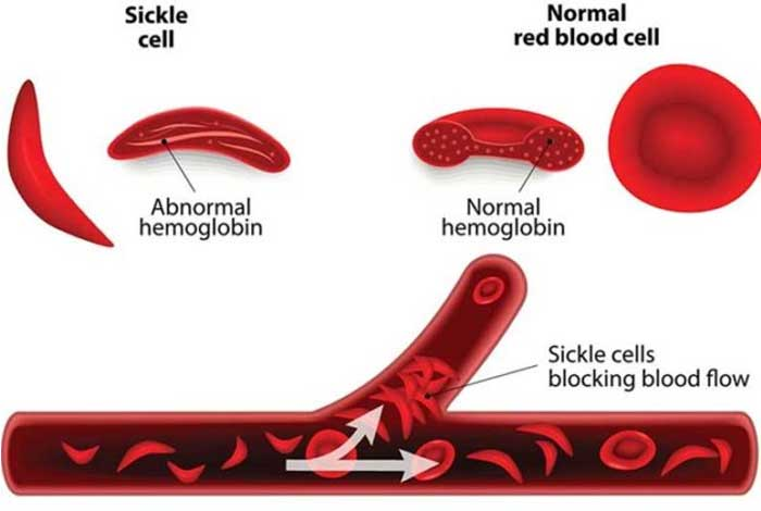 sickle cell anemia types symptoms causes diagnosis and treatment