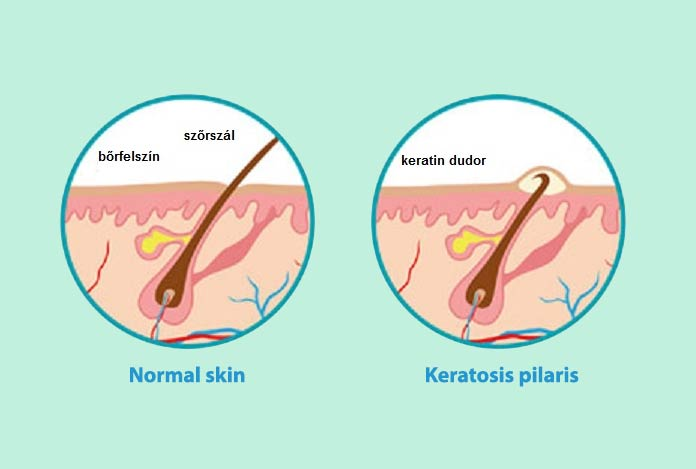 Dr. Lancer on Treating Keratosis Pilaris