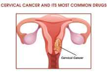 Cervical Cancer and its Most Common Drug List