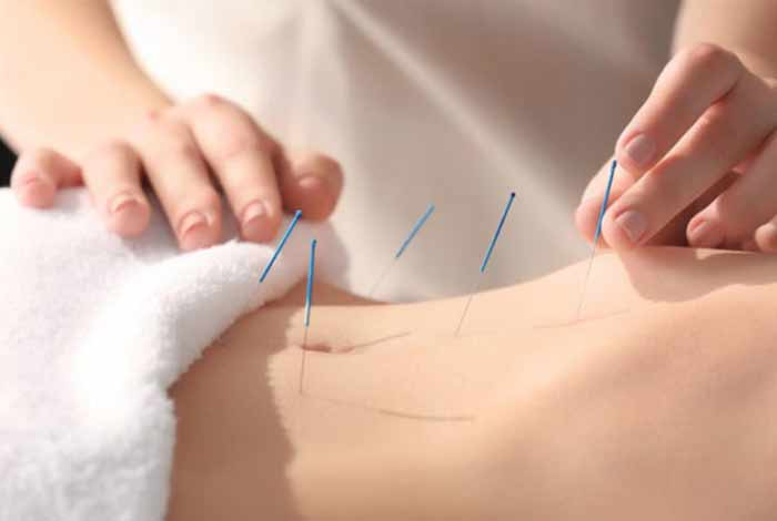 acupuncture doesnt boost fertility a study finds