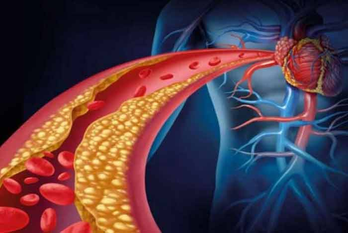 gut microbes can help reduce the risk of heart disease a study confirms