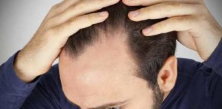 male pattern baldness and its most common drug list