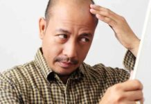 steoporosis drug might be a potential solution to male pattern baldness