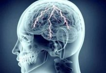 seizures types symptoms causes diagnosis prevention and treatment