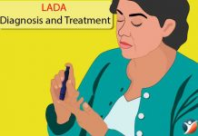 LADA diagnosis and treatment
