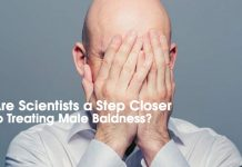 Breakthrough Trial Suggests Cure for Baldness May Be on the Way
