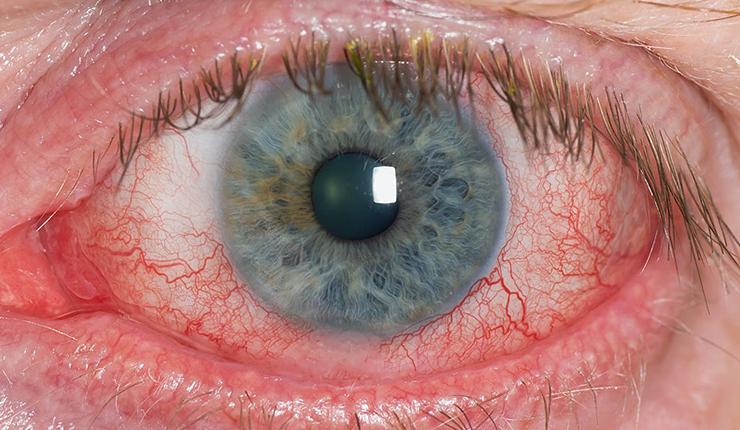 Dryness-in-eyes