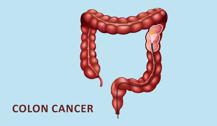 Colon-cancer-cover