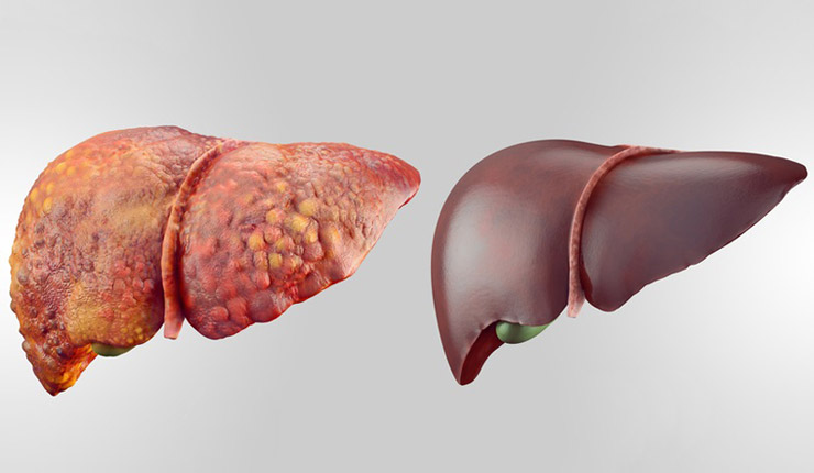 Cleanses-the-liver